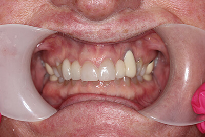 Teeth after tooth replacement