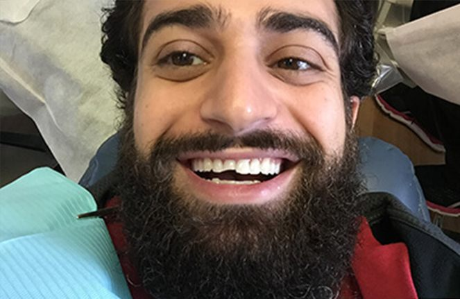 Smiling man with chipped tooth