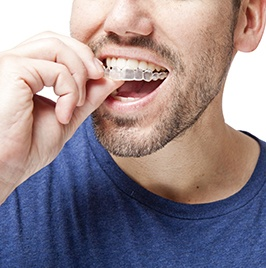 man putting Invisalign tray in mouth
