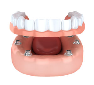 Replace your missing teeth with dental implants in Fort Lauderdale.