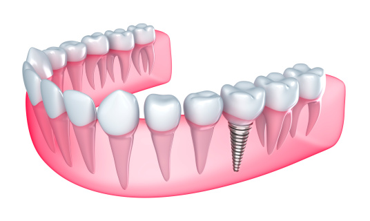 dental implant drawing