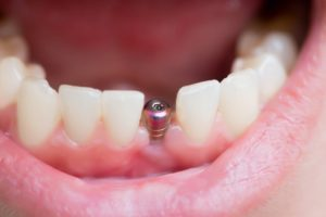open mouth showing dental implant